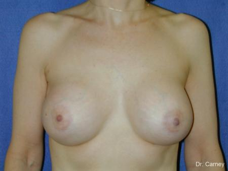 Virginia Beach Breast Augmentation 1088 -  After Image 3