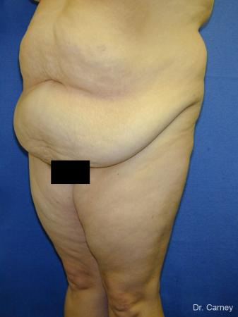 Virginia Beach Tummy Tuck 1250 - Before Image