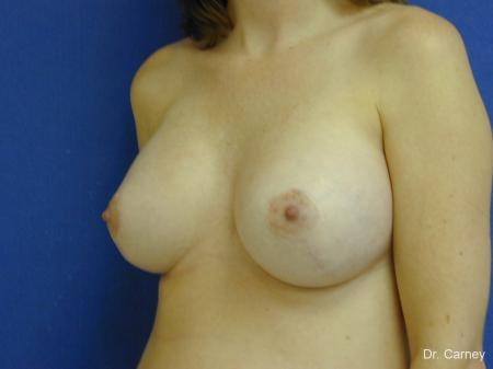 Virginia Beach Combo Procedures Breast 1095 -  After Image 2