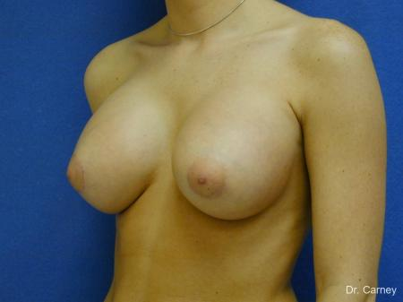 Virginia Beach Breast Augmentation 1089 -  After Image 2