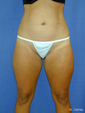 Virginia Beach Liposuction 1284 -  After Image 4