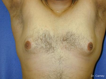 Virginia Beach Gynecomastia 1255 - Before Image 2