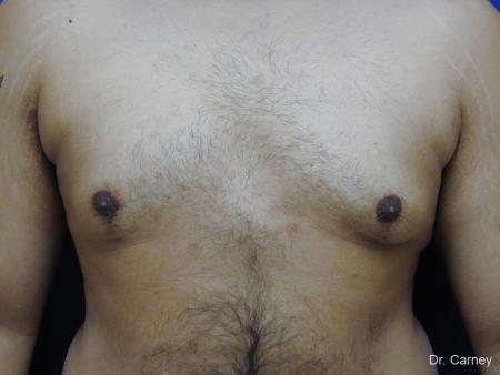 Virginia Beach Gynecomastia 1255 -  After Image 4