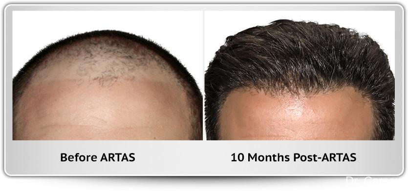 Hair Transplantation: Patient 9 - Before and After Image 1