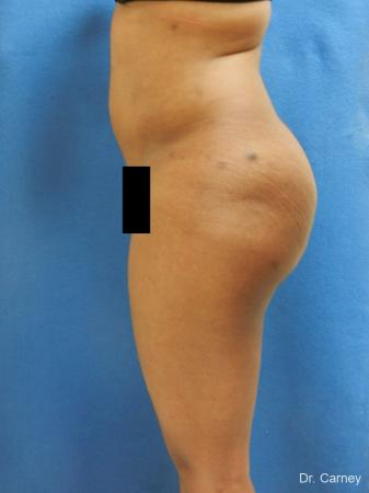 Brazilian Butt Lift: Patient 6 - After Image 1