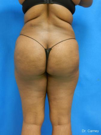 Brazilian Butt Lift: Patient 4 - After Image 3