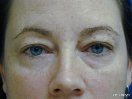 Virginia Beach Eyelid Lift 1138 - Before Image