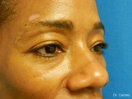 Virginia Beach Eyelid Lift 1130 - After Image