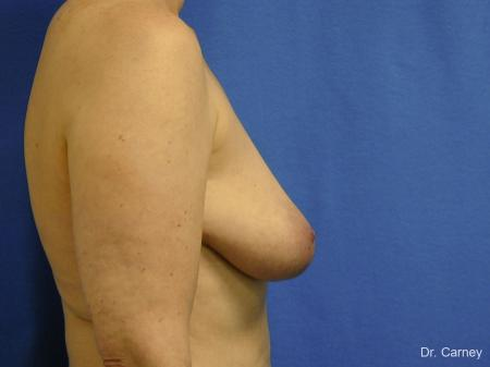 Virginia Beach Breast Lift 1185 - Before and After Image 3