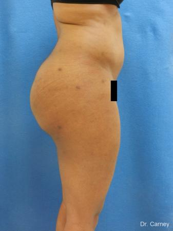 Brazilian Butt Lift: Patient 6 - After Image 5