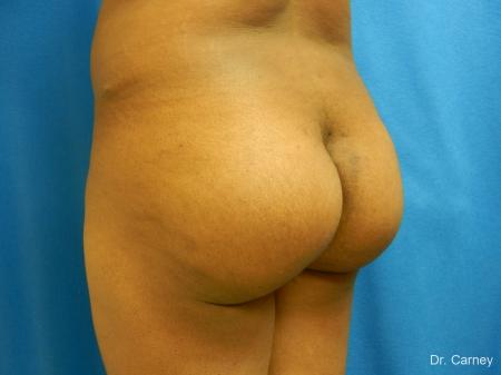 Virginia Beach Brazilian Butt Lift 1220 -  After Image 3