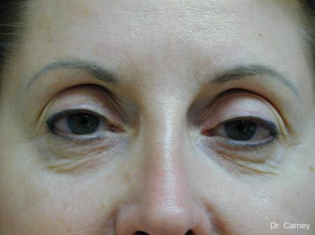 Virginia Beach Brow Lift 1216 - Before Image 4
