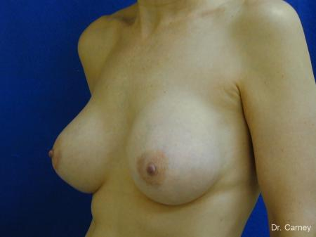Virginia Beach Breast Augmentation 1088 -  After Image 2