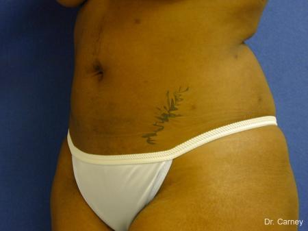 Virginia Beach Liposuction 1283 -  After Image 3