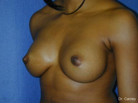 Virginia Beach Breast Augmentation 1085 -  After Image 2