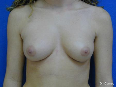 Virginia Beach Breast Augmentation 1089 - Before and After Image 3