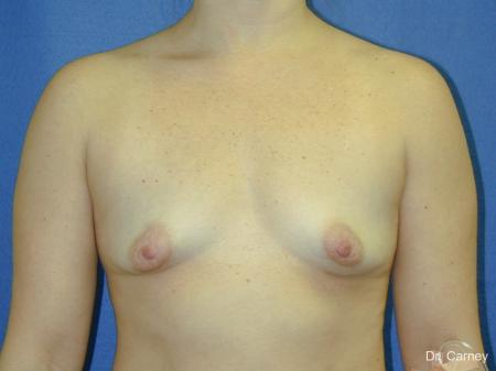 Virginia Beach Breast Augmentation 1083 - Before and After Image 3