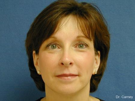 Virginia Beach Brow Lift 1217 - After Image