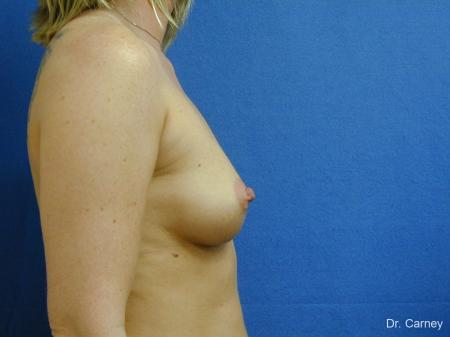 Virginia Beach Breast Augmentation 1192 - Before and After Image 3