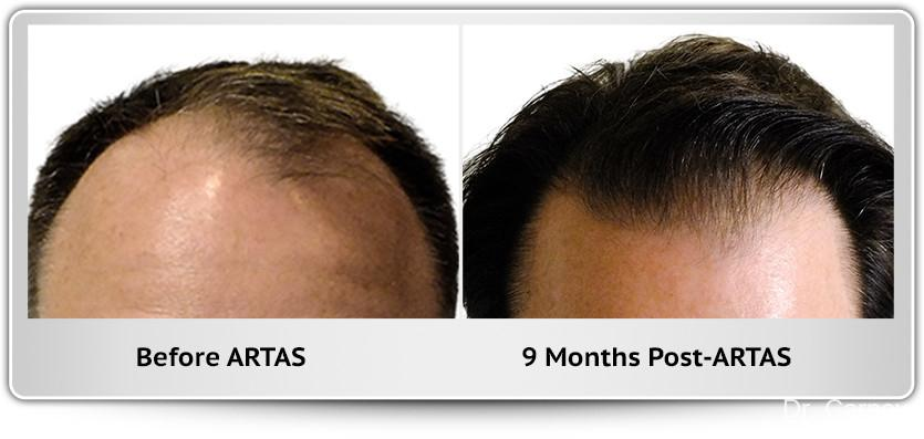 Hair Transplantation: Patient 7 - Before and After Image