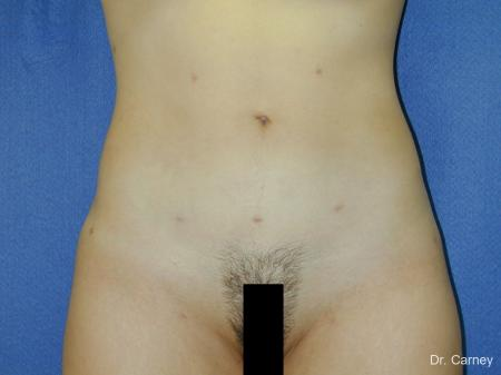 Virginia Beach Liposuction 1276 -  After Image 1