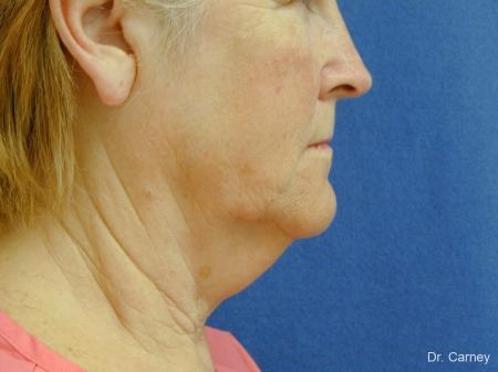 Virginia Beach Neck Lift 1207 - Before Image 2