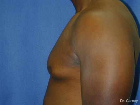 Virginia Beach Gynecomastia 1226 - Before and After Image 5