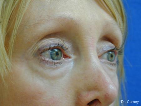 Virginia Beach Eyelid Lift 1079 - Before and After Image 2