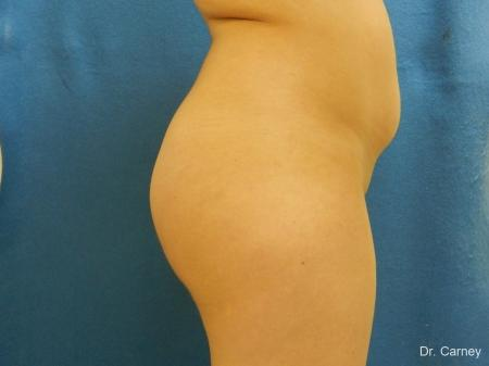 Virginia Beach Brazilian Butt Lift 1221 - After Image
