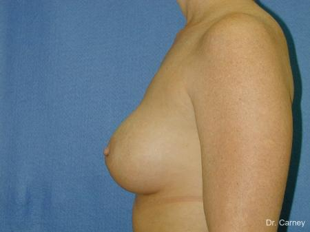Virginia Beach Breast Augmentation 1081 - After Image