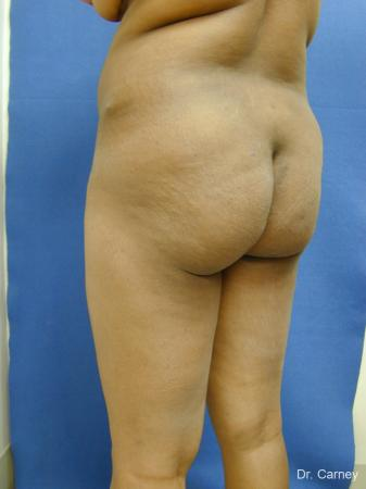 Virginia Beach Brazilian Butt Lift 1220 - Before and After Image 5