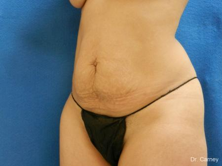 Abdominoplasty: Patient 2 - Before Image 4