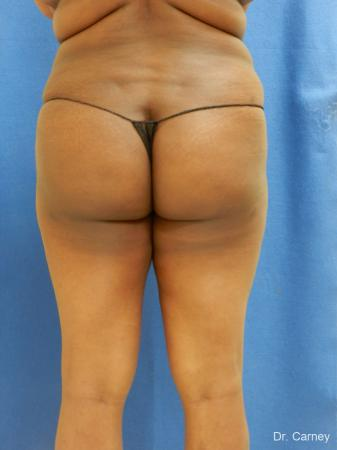 Brazilian Butt Lift: Patient 5 - After Image 3