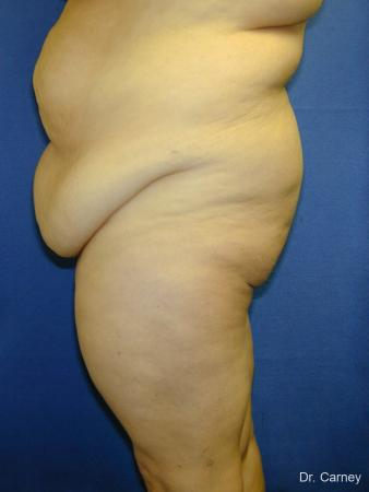 Virginia Beach Tummy Tuck 1250 - Before and After Image 2