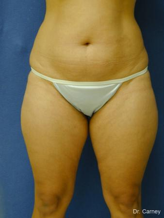 Virginia Beach Liposuction 1284 - Before Image