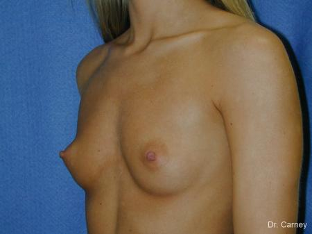 Virginia Beach Breast Augmentation 1080 - Before Image 2