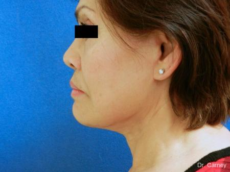 Virginia Beach Neck Lift 1268 -  After Image 3