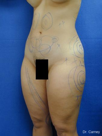 Virginia Beach Liposuction 1276 - Before and After Image 5