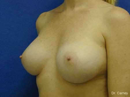 Virginia Beach Breast Augmentation 1084 -  After Image 2