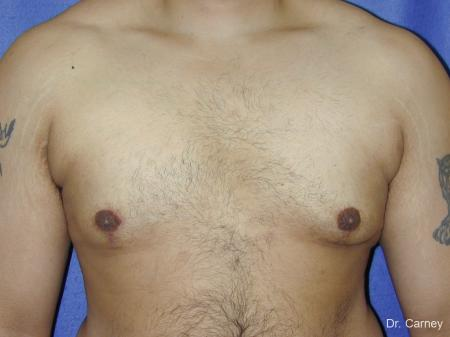 Virginia Beach Gynecomastia 1255 -  After Image 1