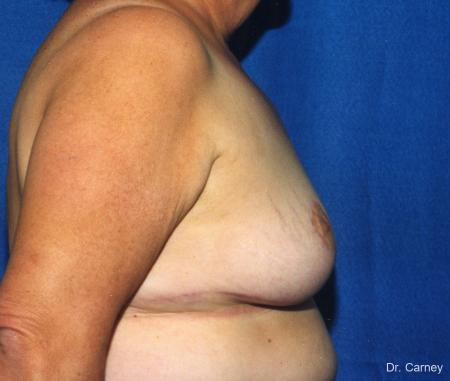 Virginia Beach Breast Lift 1186 -  After Image 2