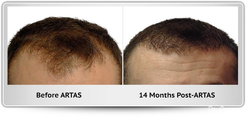 Hair Transplantation: Patient 2 - Before and After Image