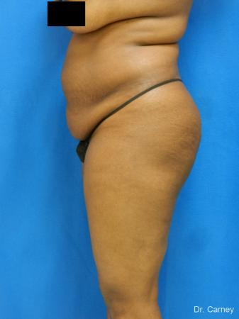 Brazilian Butt Lift: Patient 4 - Before Image
