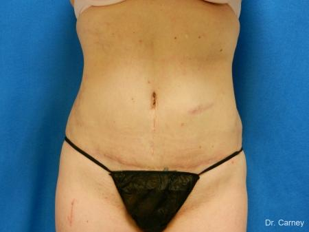 Virginia Beach Tummy Tuck 1251 -  After Image 1