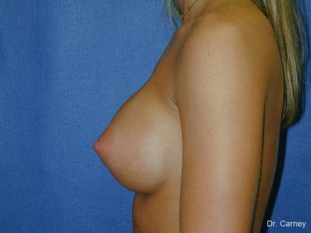 Virginia Beach Breast Augmentation 1193 -  After Image 3
