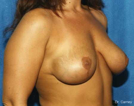 Virginia Beach Breast Lift 1187 -  After Image 1