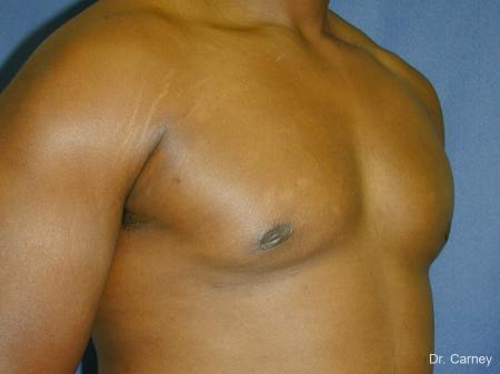 Virginia Beach Gynecomastia 1226 -  After Image 2