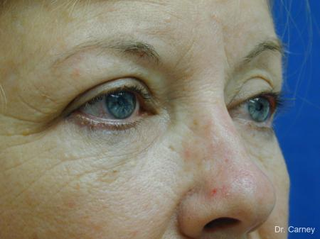 Virginia Beach Brow Lift 1266 - Before Image 2