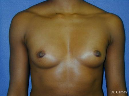 Virginia Beach Breast Augmentation 1085 - Before and After Image 3