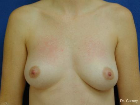 Virginia Beach Combo Procedures Breast 1095 - Before Image